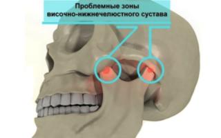 Проблемные зоны челюстного сустава