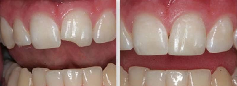 Наращивание зуба - до и после