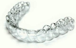 Капа для исправления кривых зубов