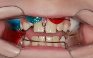 Двучелюстная ортодонтическая пластина