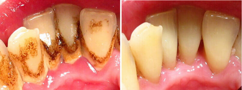 результат чистки зубов от зубного камня