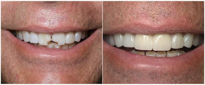 Результат наращивания передних зубов