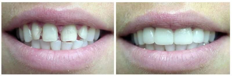 Результат реставрации зубов