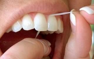 Чистка коронок зубной нитью