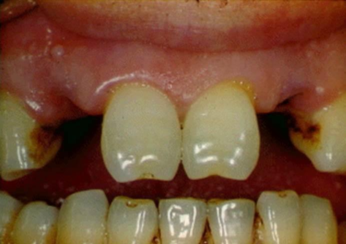 Как выглядят Зубы Фурнье