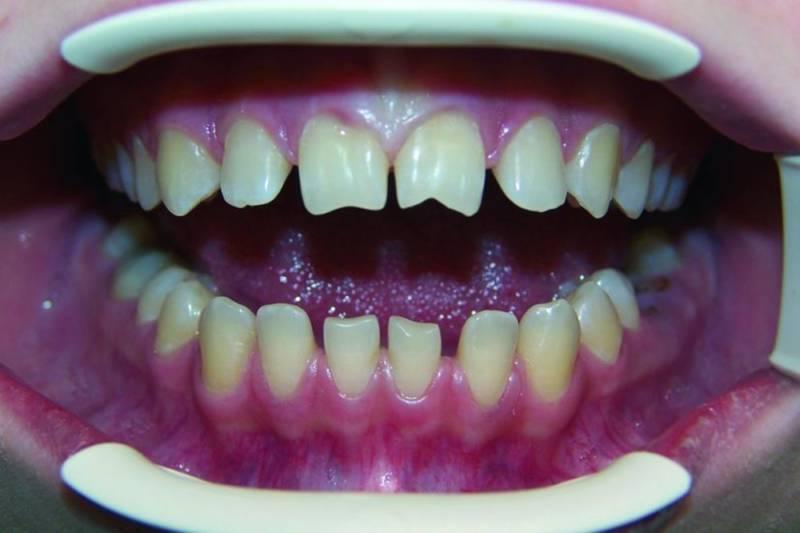 Как выглядят Зубы Гетчинсона