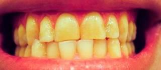Желтый налет на передней стенке зубов