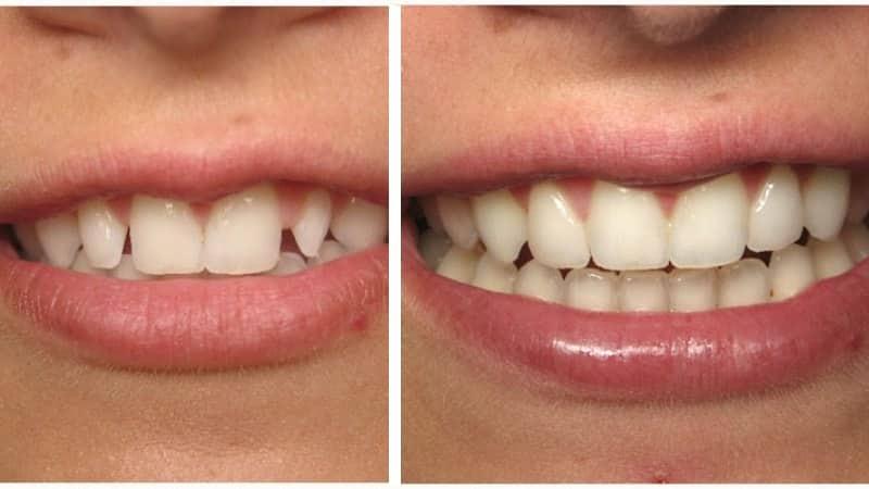 До и после наращивания зубов
