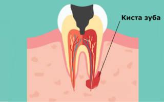 Может ли болеть голова от зуба клыка