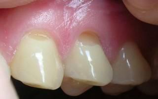 Трещина у основания зуба