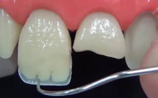 Наращивание зубов композитными материалами
