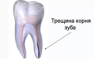 Трещина корня зуба