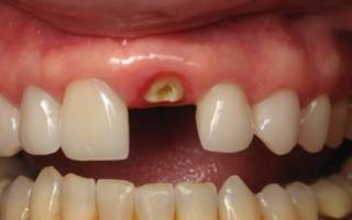 Корень зуба, оставшийся в десне