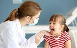 Осмотр полости рта ребенка
