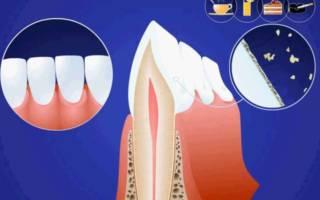 Процесс образования зубного камня