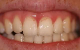 Налет у корней зубов