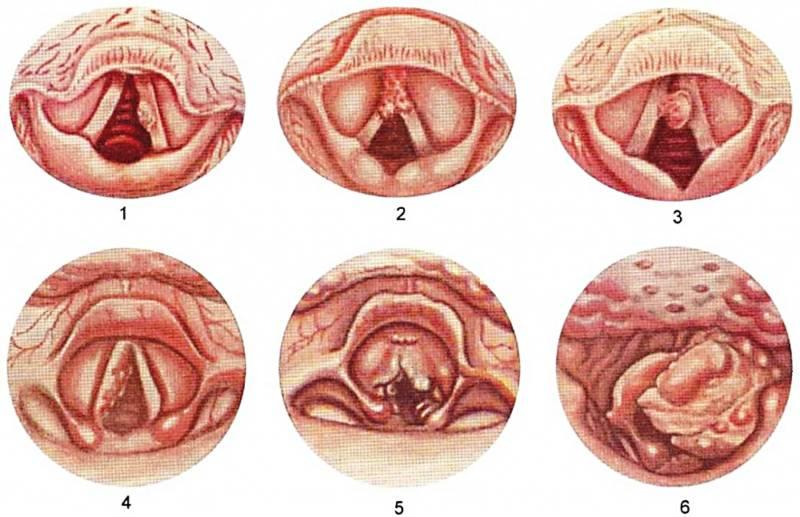 Локализация опухолей при раке горла