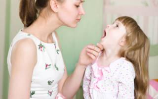 Мама осматривает полость рта ребенка