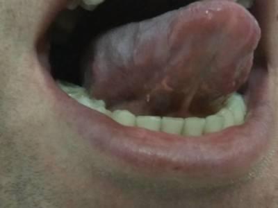 Остроконечный нарост под языком