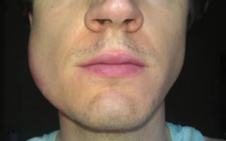 Отек щеки после удаления зуба