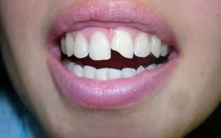 Откололся передний зуб