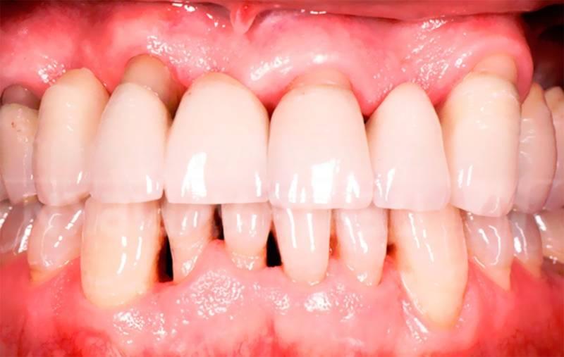 Лечение пародонтоза зубов по доступным ценам в Москве