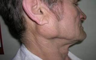 воспаление околоушной слюнной железы у мужчины