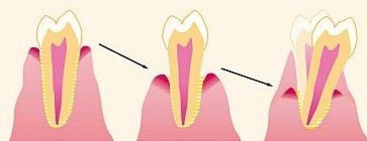 Процесс оголения корня зуба