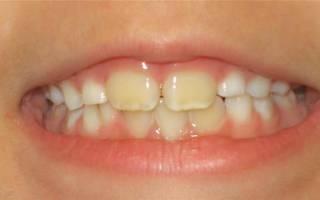Желтый налет на молочных зубах