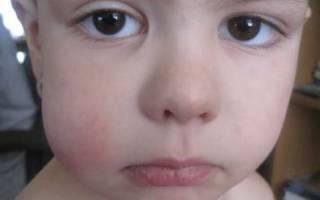 Отек щеки у ребенка
