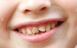 трещины на зубах у ребенка