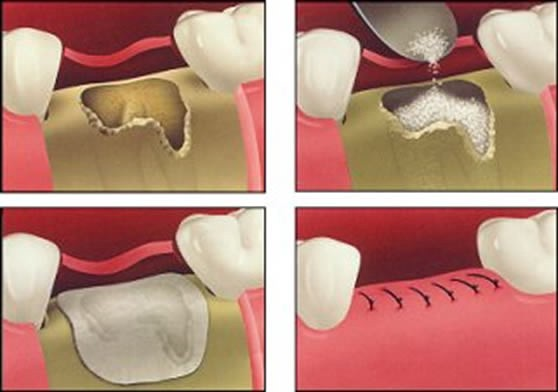направленная тканевая регенерация перед имплантацией