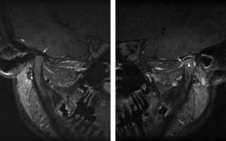 Артрит челюсти на рентгене