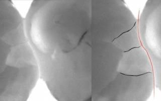 Внутренние трещины на зубах рентген