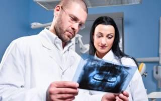 Стоматолог смотрит рентген зубов