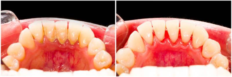 До и после чистки зубов от зубного камня