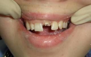 Сломанный зуб