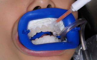 Химическая чистка от зубного камня
