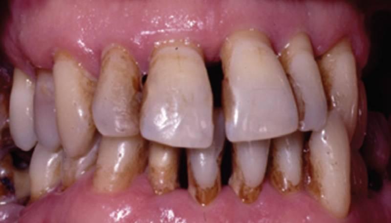 Зубы с пародонтитом