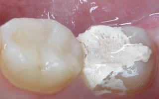 Временная пломба в жевательном зубе