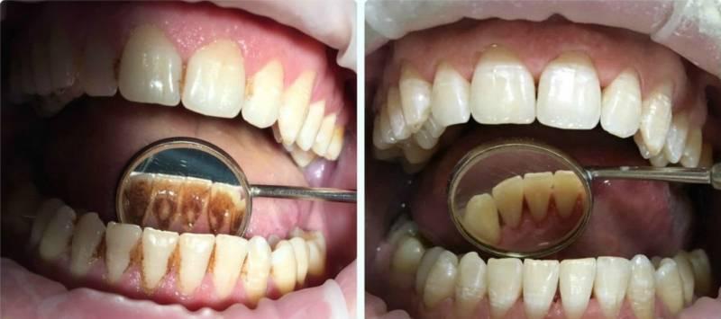 Результат удаления зубного камня