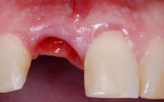 Кровяной сгусток в лунке зуба