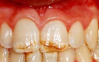 Горизонтальные трещины на зубах