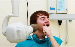 Визиография зубов