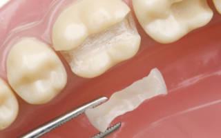 Установка вкладки в зуб