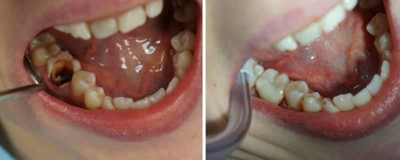 До и после реставрации жевательных зубов