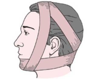 Фиксация челюсти