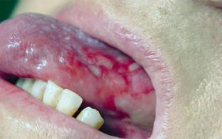 Язык при туберкулезе
