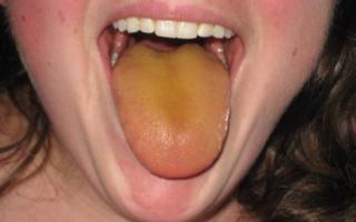 Желтовато-зеленый язык