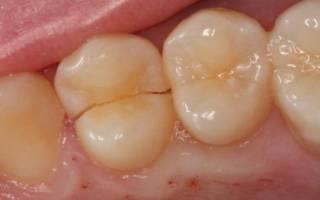 Трещина на жевательном зубе
